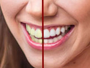 How to Whiten Teeth in a Photo